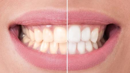 <h5>Zuby srovnání</h5>