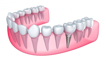 <h5>Zubní náhrada</h5>